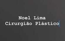 noel-lima